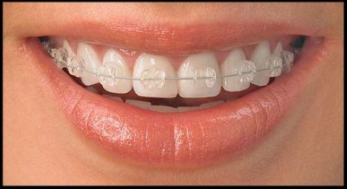 -зубы-не-приговор.jpg